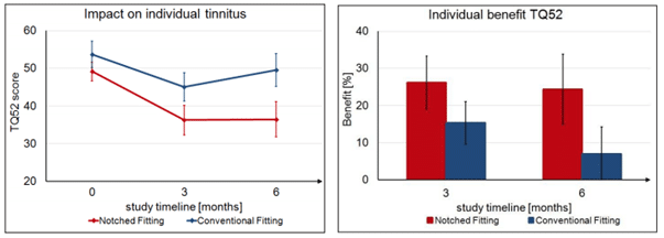tinnitus notch therapy hearing aids graph