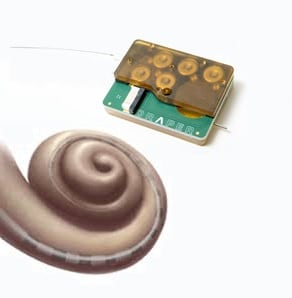 cochlear drug delivery hearing loss