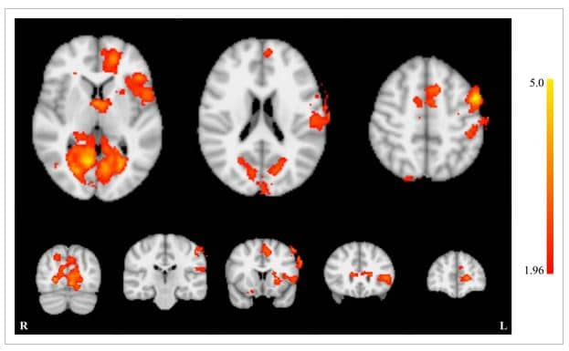 neurofeedback tinnitus fmri