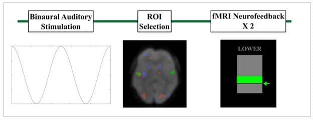 tinnitus neurofeedback