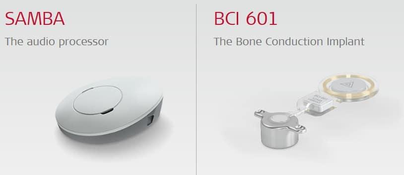 Med El Bonebridge Bone Conduction Implant System Granted