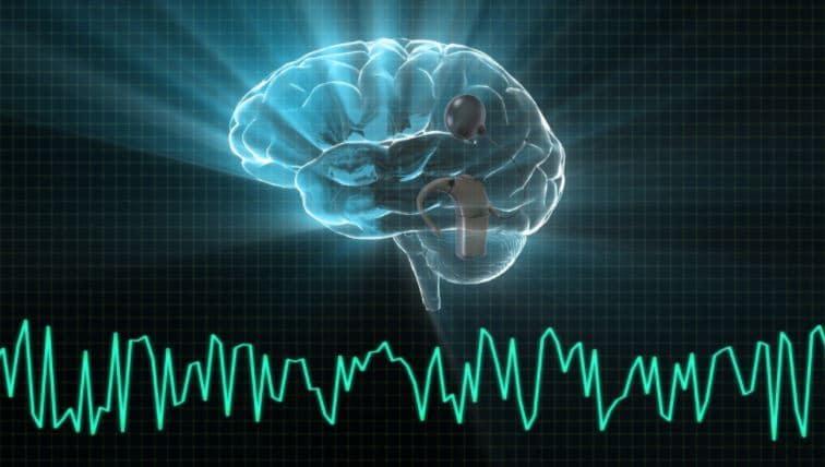 cochlear implant eeg brainwave