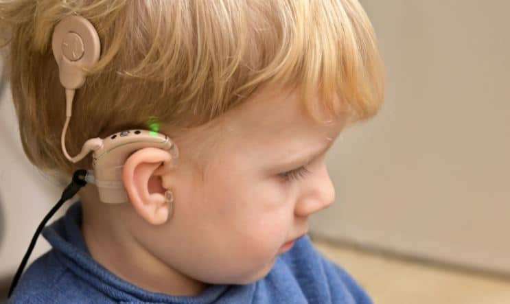 cochlear implant use