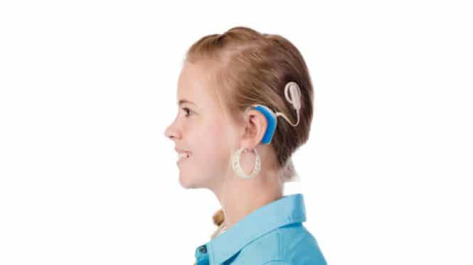 cochlear implant mapping