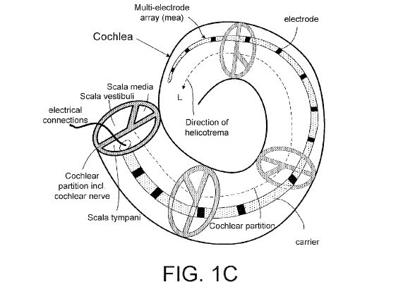oticon medical cochlear implant patent