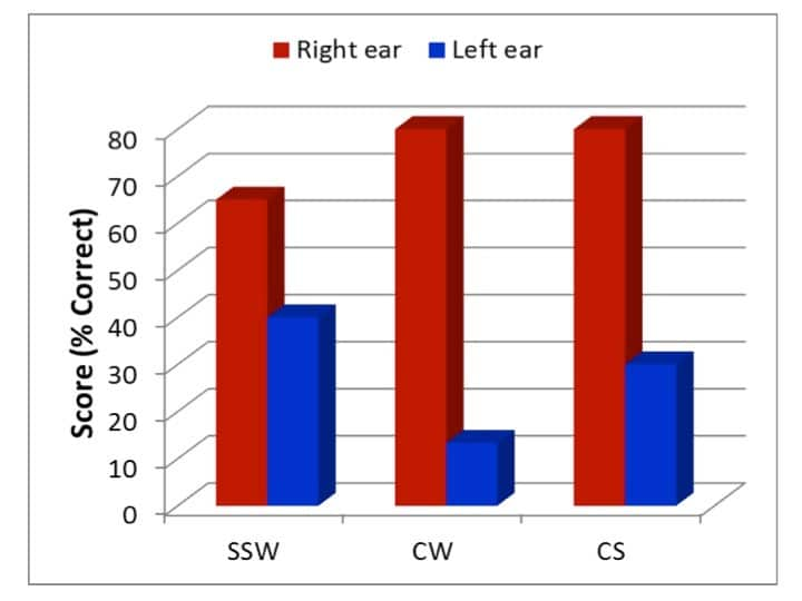 Figure 2.  Scores (% correct) on the SSW competing conditions and the CW tests during the right ear first tasks and during the competing sentence (CS) tests (Adapted from Rawool, 2014)