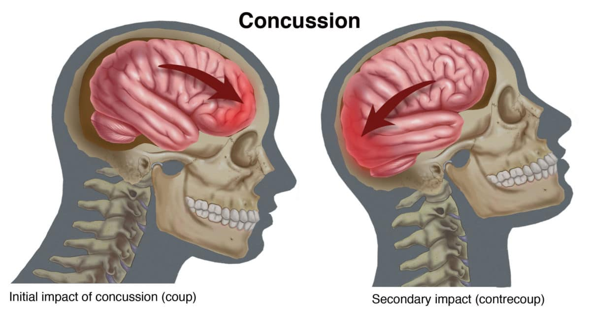 Concussion: A Condition for Audiology Awareness–Judy Huch–The ...