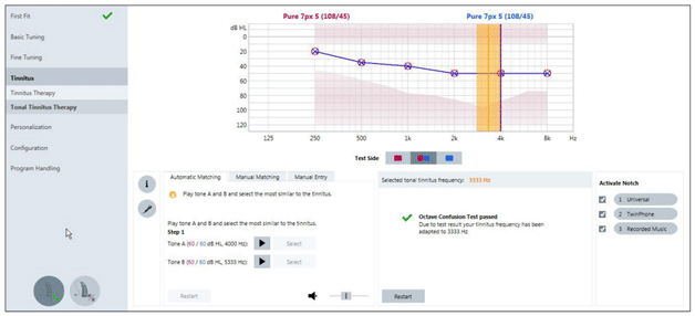 notch therapy tinnitus software