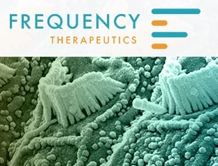 frequency therapeutics hearing loss drug development