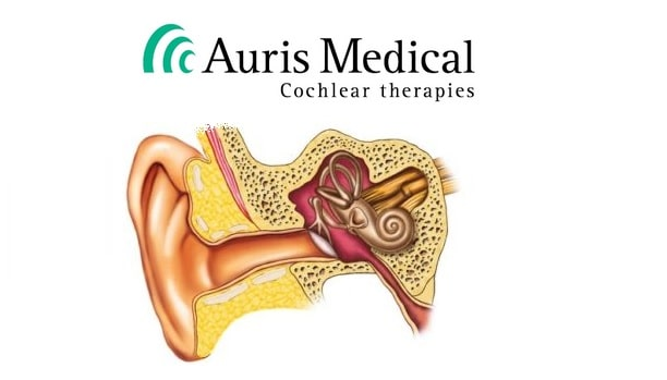 auris medical tinnitus drug trial