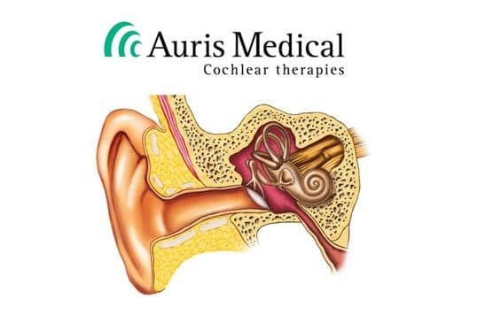auris medical hearing loss treatment