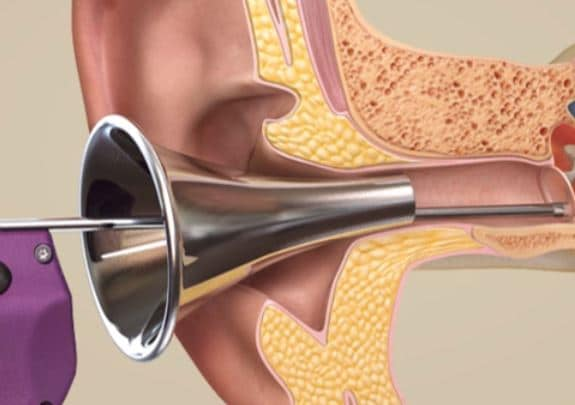 tula ear tube system