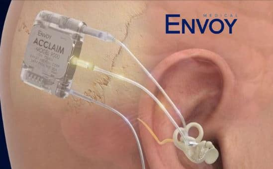 acclaim cochlear implant envoy