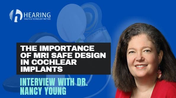 cochlear implant interview nancy young