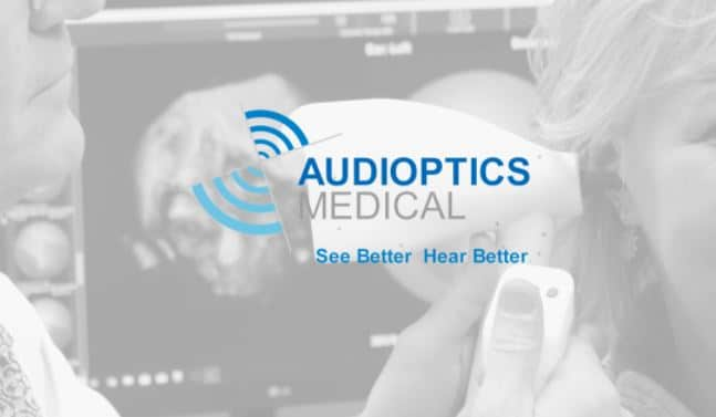 audioptics middle ear system ossiview