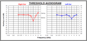 Figure courtesy of www.audiometrictesting.co.uk