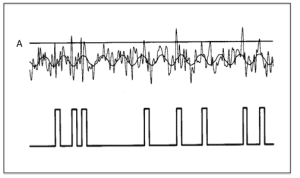 """Figure 2. Another way to illustrate how 'below threshold' signals can be pushed above threshold and recorded as hits detected. Threshold is indicated on top as """"A"""". (adapted from Wiesenfeld & Weiss5)."""
