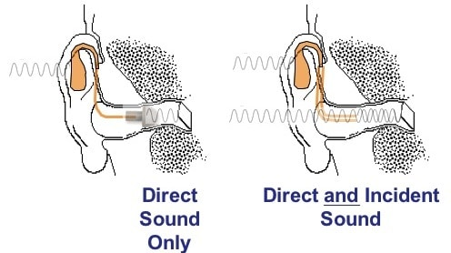 Illustration showing how direct sound is processed at the eardrum versus how the amplified processed sound is processed at the eardrum.