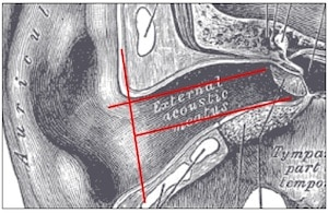 Figure 4. Ear canal length, showing that the superior portion of the TM is closest to the external environment. Both red lines from the aperture to the TM are the same length.