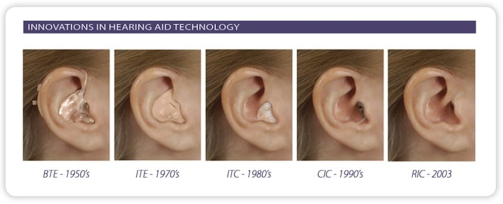 Major innovative cosmetic changes in hearing aids since the 1950s that dominated the marketplace. The BTE (behind-the-ear) hearing aid of the 1950s is shown with a full shell earmold. In the 1970s, the ITE (in-the-ear) began its steady climb to drive the market. Smaller hearing aid components led to less visible (more cosmetic) hearing aids during the 1980s with the ITC (in-the-canal) hearing aid being a featured configuration. This was replaced in the 1990s with the CIC (completely-in-the-canal) unit, again benefiting from instrument component size reductions. The RIC (receiver-in-the-canal) of the 2000s and continuing today benefited from component size reduction, but also allowed a larger processor (behind the ear) to allow for electronic and acoustic benefits.