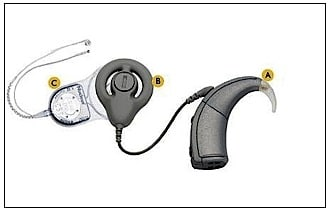 Figure 2.  Contemporary cochlear implant components.
