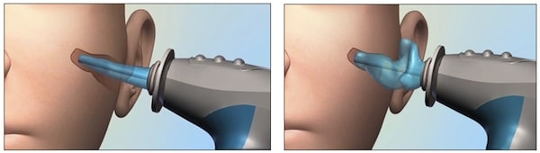 Figure 5. 3D digital ear scanner from Lantos. The left image shows the insertion of the soft conforming membrane into the ear canal. The right image shows the soft conforming membrane expanded with a water based optical dye to the shape of the ear canal. An internal scope advances and retracts to generate a 3D map of the ear canal in real time.