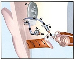 Figure 4.  In this example of a middle ear implant (MEI), a surgical procedure implants an eardrum sensor in the middle ear cavity, takes that signal and amplifies it, sending the amplified signal to the cochlea via exaggerated movement of the auditory ossicles.