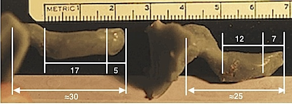 Figure 13.  Ear impressions of the complete external auditory canal, including imprints of the tympanic membrane, taken from live subjects.  The tympanic membrane contributes approximately 6 mm to the overall length of the ear canal, and as a result, affects the measurement length, depending on the contact area to where the measurement is made.  If the measurement is made along a superior-posterior axis, the length will be shorter than if the measurement is made along an inferior-anterior axis.  This fact contributes to variations in ear canal length measurements.  (Wayne Staab photos).
