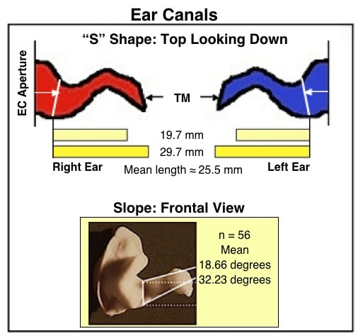 """Figure `10.  General """"S"""" shape of the external auditory meatus, along with a range of canal lengths (top, as measured from the aperture), and general slope of the ear canal . (Staab, 2002).(bottom).  (Staab, 2002)."""