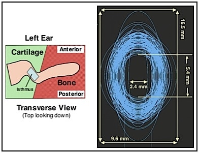 Figure 6.  Elliptical plotting of the isthmus of each of the adult ear impression measurements from Staab and Sjursen (2000) to provide a visualization of the range of data from their study (n = 112).   The left image shows the approximate location of the isthmus for reference, as viewed from the top looking down.