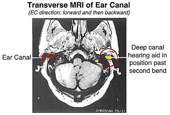 Figure 18.  MRI showing configuration of ear canal (left side), and a deep fitting canal hearing aid inserted beyond the second bend (right side).