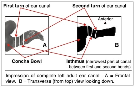 Figure 9. Two views of the human ear canal. That on the left (A) is that most commonly shown. However, the view from above looking down provides the best information relative to the shape of the ear canal.