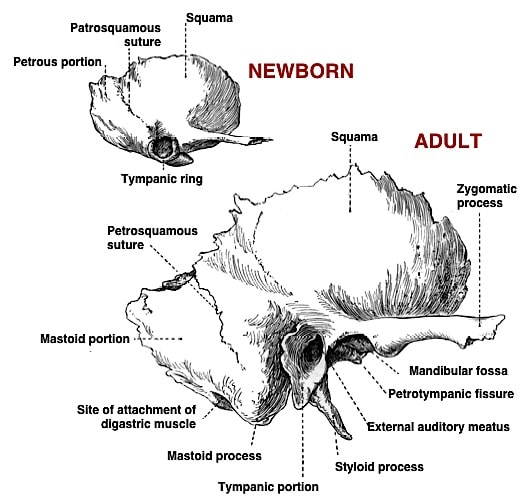 Figure 7.     Temporal bones of newborn and adult, showing differences, with special emphasis on the bony walls of the ear canal opening. In the newborn, the tympanic ring is short and incomplete.     However, in the adult, the posterior-superior portion of the ear canal develops greater bony lining than does the anterior-inferior portion of the ear canal.
