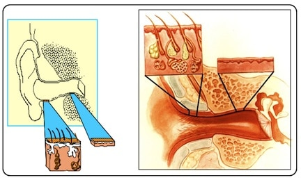Figure 1.  Skin thickness differences between the cartilaginous and bony canal portions, along with underlying substructure differences.