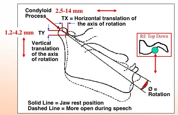 Figure 6. These measurements were made using cinefluorography (moving x-rays). This shows that the mandible moves in three translations: horizontal, vertical, and rotational.