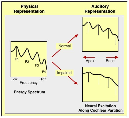 Figure 2. Hypothetical internal auditory representation of a vowel processed by arrays of sharply tuned auditory filters (top right) and of broadly tuned auditory filters (bottom right). Spectral peaks are not resolved effectively by the broadly tuned filters. (After Bailey, 1983 in Dorman, 1986).