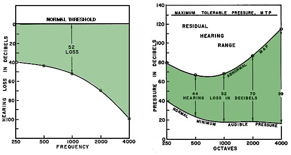 Figure 3. The audiogram (left) and hearing aid fittings based on it, calculate desired amplification from the level of the hearing loss (a relative value). Otometry (right) bases amplification on sound pressure MCL (most comfortable loudness), an absolute value, which lies, when measured, about half way between the recorded abnormal MAP and the maximum tolerable pressure (MTP). The comparisons are: normal threshold (Hearing Loss) compared to normal minimum audible pressure (MAP); and hearing loss in relative dB compared to abnormal MAP in absolute sound pressure.