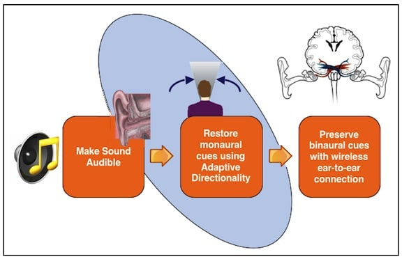 Figure 1. Evolution of speech intelligibility in hearing aids. The industry has developed beyond the first goal, that of making sound audible, and continues to improve upon and expand goals two and three.