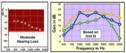 Figure 1. Moderate sloping hearing loss (left) to which three premium RIC open fit hearing aids were programmed. The frequency responses on the right are the 2cc coupler responses for the quick fit as prescribed by the manufacturers' fitting software.