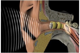 Figure 4. The Lyric semi stock/custom hearing aid designed to fit deeply within the ear canal, close to the tympanic membrane.