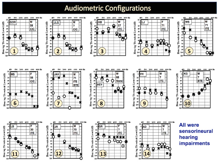Figure 1. Pure-tone air-conduction thresholds for the fourteen subjects. All subjects were evaluated as having sensorineural hearing, and therefore, no bone-conduction thresholds are shown.