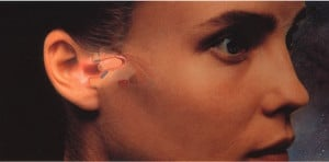 Figure 1. The Philips XP Peritympanic hearing instrument. Its positioning deep within the external auditory canal and in close proximity to the tympanic membrane made it essentially invisible, but even more, offered significant acoustic benefits.