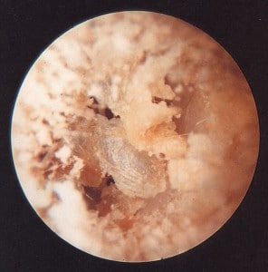 Figure 4. Dry cerumen (earwax), showing its crumbly/flaky, and grayish-white consistency.