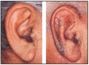 Figure 2. Tragi hairs found in the tragus, antitragus, and helix portions of the ear canal (Hawke and McCombe, 1955).