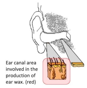 "Figure 1. The outer (cartilaginous) one-third portion of the ear canal (shown in red) is the location for the production of cerumen (earwax). The cartilaginous ear canal skin thickness is from 1 to 1.5 mm. The skin thickness underlying the bony (inner two-thirds) of the ear canal is approximately 0.1 mm in ""thinness,"" and as a result, has insufficient structure or thickness to contain sebaceous or modified apocrine glands."