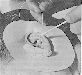 Figure 2. Client preparation: ear protector, rolled strip of silicone putty in front of the ear to prevent material from flowing out, and showing the insertion of the hand-tied cotton block.