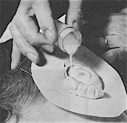 Figure 5. Pouring continued until the entire ear canal (to the block), concha, and outer features of the ear were filled.
