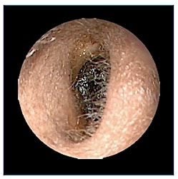 """Figure 2. Impacted cerumen that occludes the entire ear canal. This is in a somewhat """"wet"""" stage."""