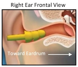 """Figure 2. This image is of the right ear as viewed from the front. It shows a flanged earpiece in the ear canal. Most hearing aids do not use a three-flanged tip as shown on this earplug, but use a single or double flange (or what some refer to as a dome or umbrella). Such designs can also push cerumen into the ear canal, but have an added action advantage of """"scraping"""" the ear canal during withdrawal, and thus, pulling ear wax with it. This action is enhanced the more deeply the earpiece is inserted, and especially when past the cerumen-producing area of the ear canal. With consistent use, it is speculated that cerumen would not build up in such a system."""