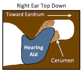 Figure 1. This drawing is of the right ear, looking down on the ear canal. Many hearing aids or earmolds are carrot-shaped (tapered) at the end to facilitate insertion and user comfort. It is possible that they also push ear wax aside during insertion, and because they have little surface friction, do not allow cerumen to adhere during withdrawal. The result could easily be a buildup of cerumen around the tip of the earpiece (light brown colored area).